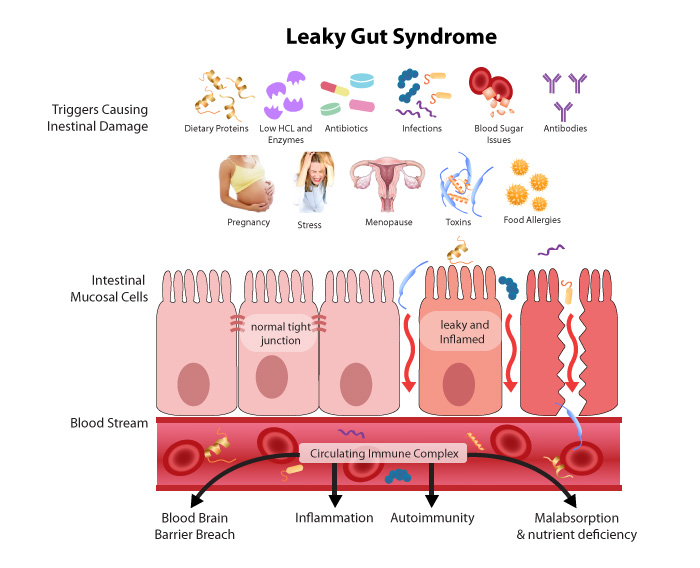improve your stomach health body expert systemsdid you realise that you have more bacteria in your gut than cells in your body! 100 trillion microorganisms\u2026 10 times more bacteria than the combined