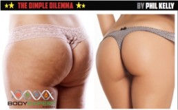 Cellulite Treatment in Vietnam